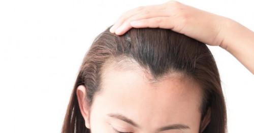 3 Kebiasaan yang Membuat Rambut Mudah Rontok
