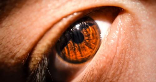 4 Cara Salah Merawat dan Menggunakan Lensa Kontak