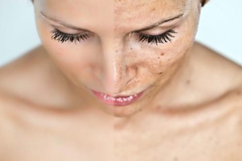 5 Kandungan Yang Ampuh Mengatasi Masalah Hiperpigmentasi Pada Kulit Wajah