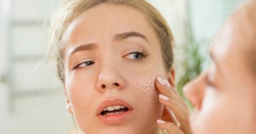 Pemilik Kulit Kering, Pastikan Bahan Kandungan Ini Ada di Dalam Skincare Anda!