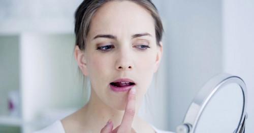 Inilah 7 Cara Mengatasi Bibir Pecah-pecah yang Mudah dan Praktis