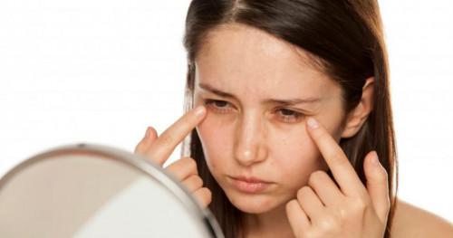 3 Cara Menghilangkan Kantung Mata Secara Alami