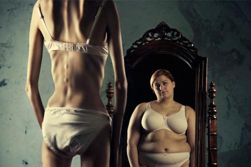 Diet Berlebihan dan Tidak Sehat Akan Membawa Anda Pada Penyakit Anorexia