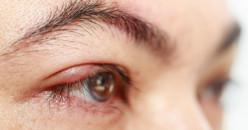 Mata Bintitan: Penyebab, Ciri-Ciri dan Cara Mengatasinya