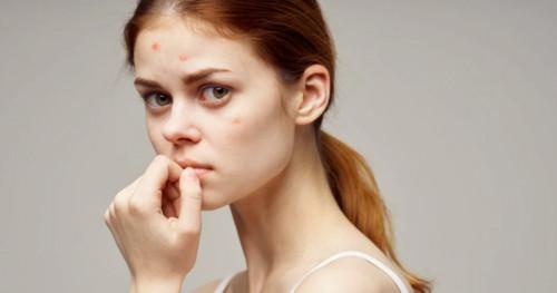 4 Bahan Kandungan Terbaik untuk Skincare Kulit Berjerawat
